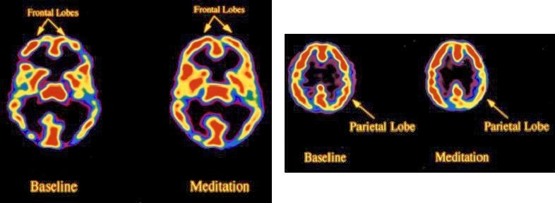 63d09-sociedade-portuguesa-de-meditac3a7c3a3o-neurociencia-cc3a9rebro